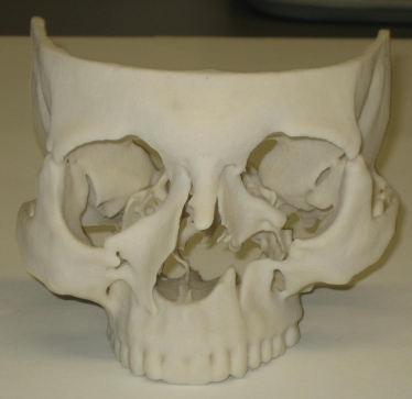 Real model of the human skull produced by Rapid Prototyping technology